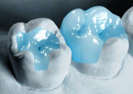 Dental-Inlays-Onlays