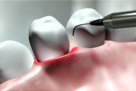 LaserskoZdravljenje1