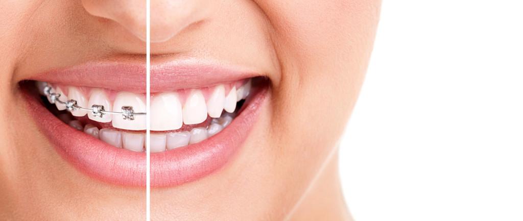Ortodontija1_